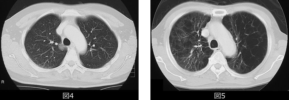 正常人の肺のCT写真と典型的なCOPDのCT写真