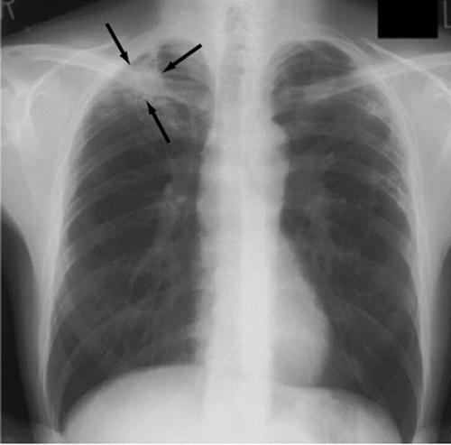 胸のレントゲン写真